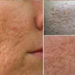 Szeretnél ismét feszes sima bőrt? Ez igazán egyszerű, és még orvoshoz sem kell feltétlenül fordulnod