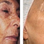 Ha szeretnéd, hogy az arcod megfiatalodjon, a 7 megoldás egyike Rád vár