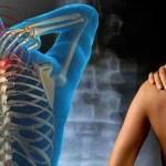 Lehet, hogy Te is fibromialgiától szenvedsz – természetes gyógymódok a kezelésére