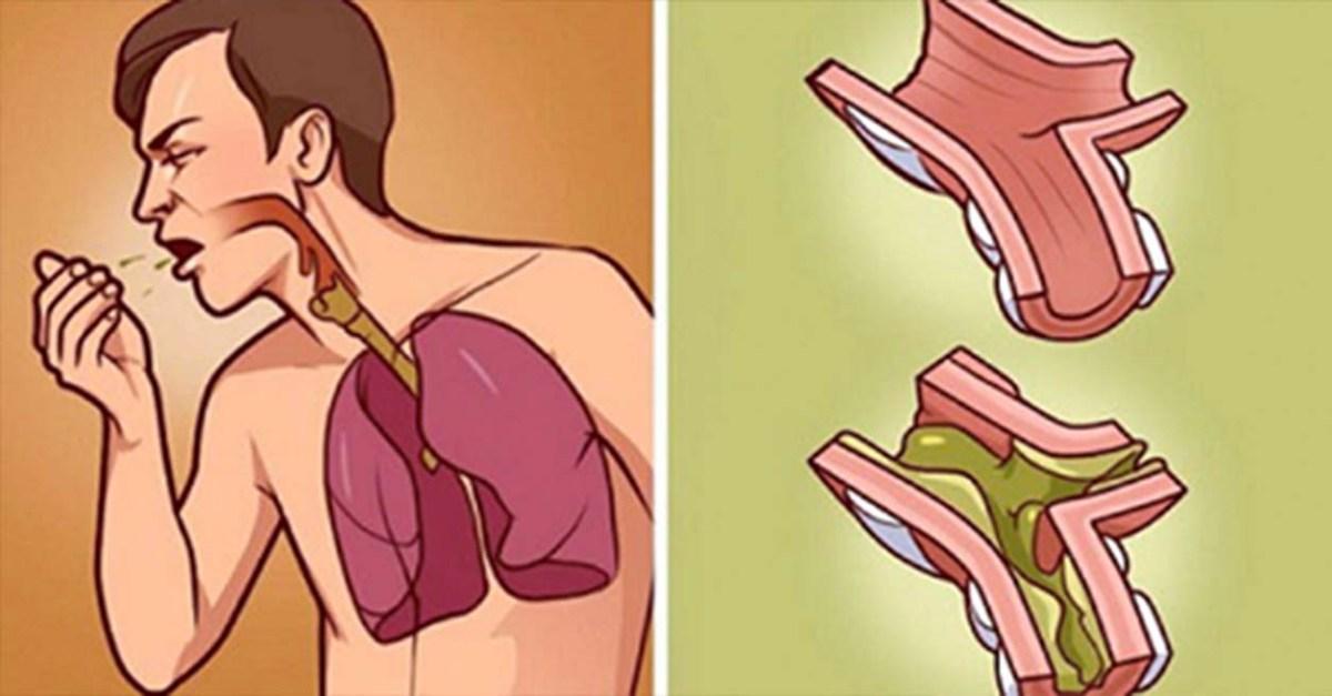 Ha a tüdőd tele van lerakódással, ez a legjobb kúra! 100 százalékban természetes, és néhány óra alatt hat!