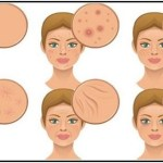 6 élelmiszer, ami felborítja a hormonháztartást és tönkreteszi a bőrt – Ennek a receptnek a segítségével visszaállíthatod