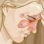 A fejben jelentkező fájdalmak és gyulladások kezelése otthon
