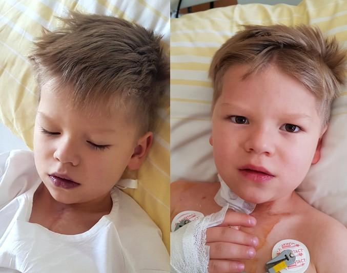 prije i poslije SPO2.jpg