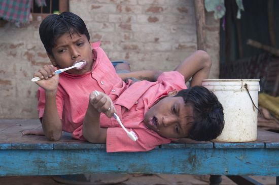 conjoined twins Shivnath and Shivram