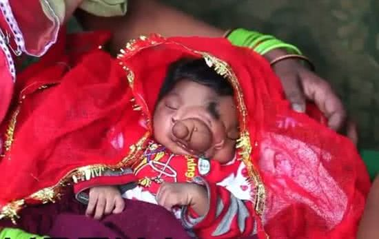 印度象鼻畸形女嬰