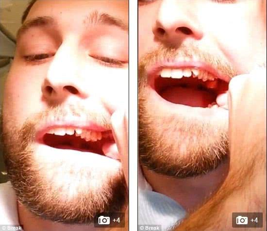 丹麥牙醫系學生 Jesper Ryltoft 自拔智齒