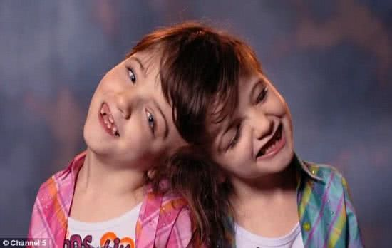 加拿大七歲連體嬰塔蒂安娜和克莉絲塔