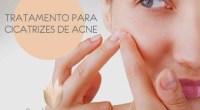tratamento acne florianopolis dermatologista
