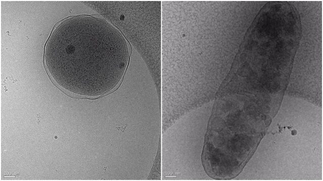 Cryo-electron microscopy images showing Prochlorococcus (left) and Alteromonas. The interaction between these two globally important microbes can be altered by ocean acidification. (Images: Terje Dokland, University of Alabama Birmingham).