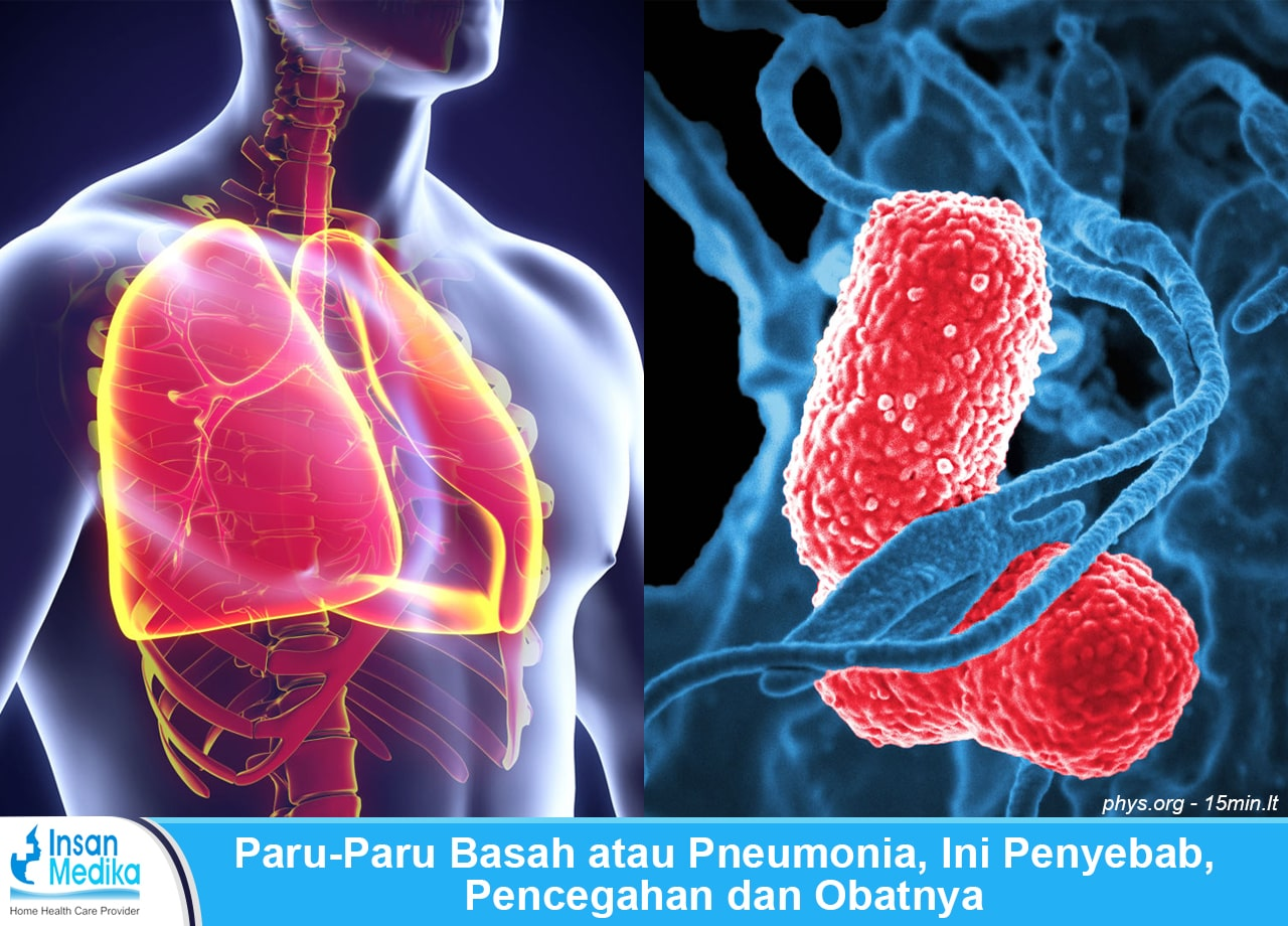 Penjelasan paru-paru basah atau pneumonia, gejala, penyebab, pencegahan dan pengobatan