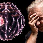 Kenali 10 Gejala Kanker Otak Berikut Ini