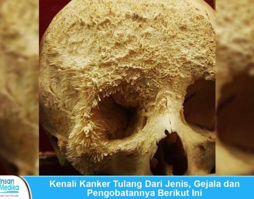 Jenis, gejala dan pengobatan kanker tulang