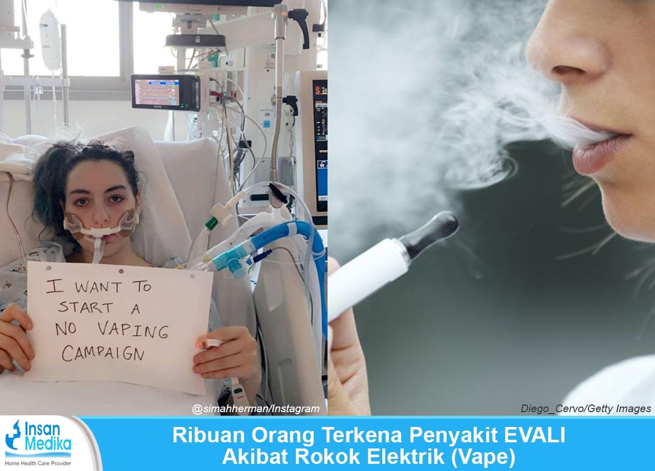 Bahaya rokok elektrik atau vape sebabkan penyakit EVALI
