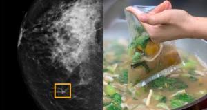 Bahaya kemasan plastik untuk membungkus makanan dapat sebabkan kanker