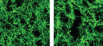 Dopamine neurons. Image credit: Witten et al., Nature Neuroscience