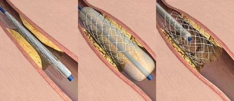 How do coronary stents work? - Scientific American Blog ...