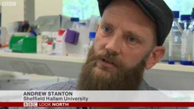 HeadUp Project: Andy Stanton interviewed for BBC Look North