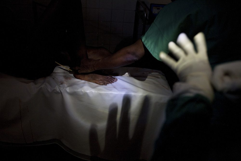 A surgical team performs a c-section during a power cut in Abobo Sud Hospital in Abidjan, Ivory Coast, April 18, 2011. A week after the end of the military standoff in Abidjan, very few hospitals are open. During the height of fighting, people were stuck in their homes for up to a month without access to health care.
