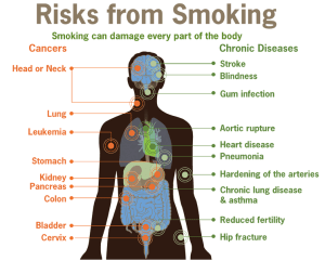 Health experts say smoking can be hazardous to your health (CDC via Wikipedia Commons)