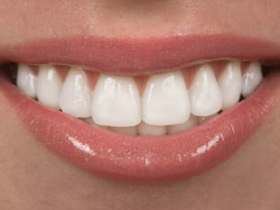 8 tips for how to keep your teeth healthy and clean