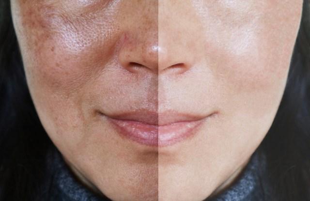Sự thật Glutathione có giảm nám, trắng da được không?
