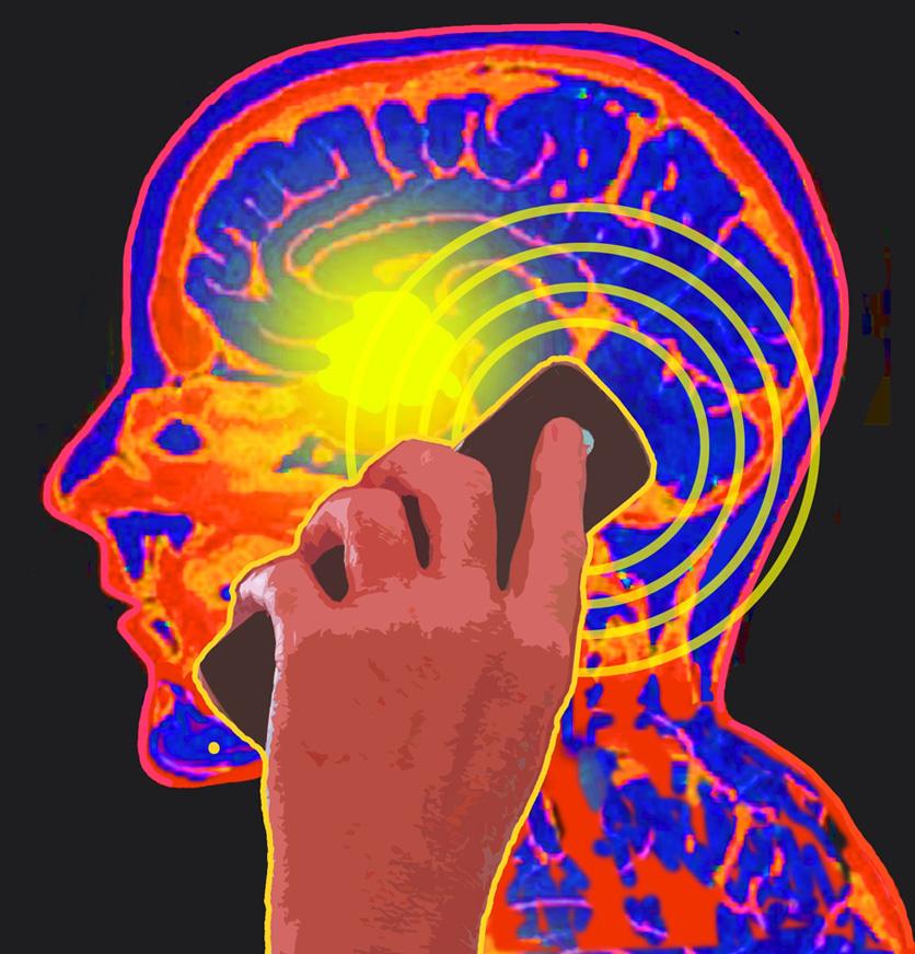 tumeur-du-cerveau-via-l-usage-d-un-telephone-cellulaire