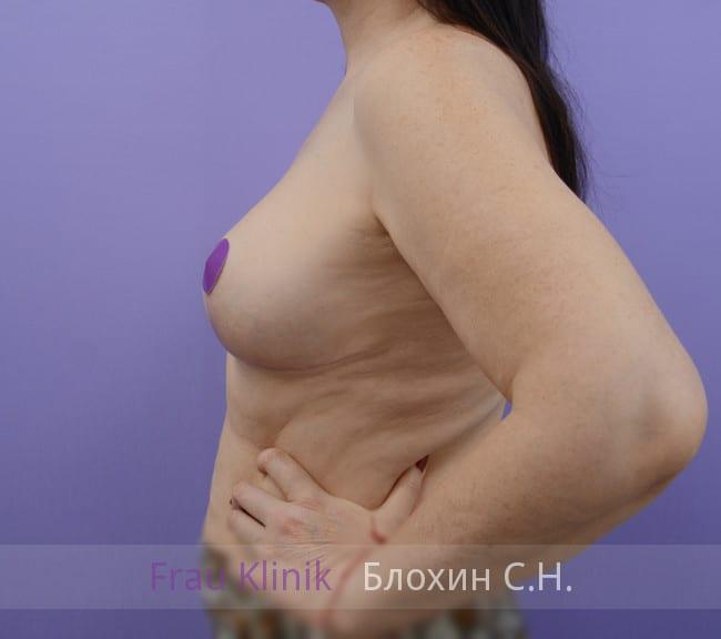 Повторная маммопластика 45