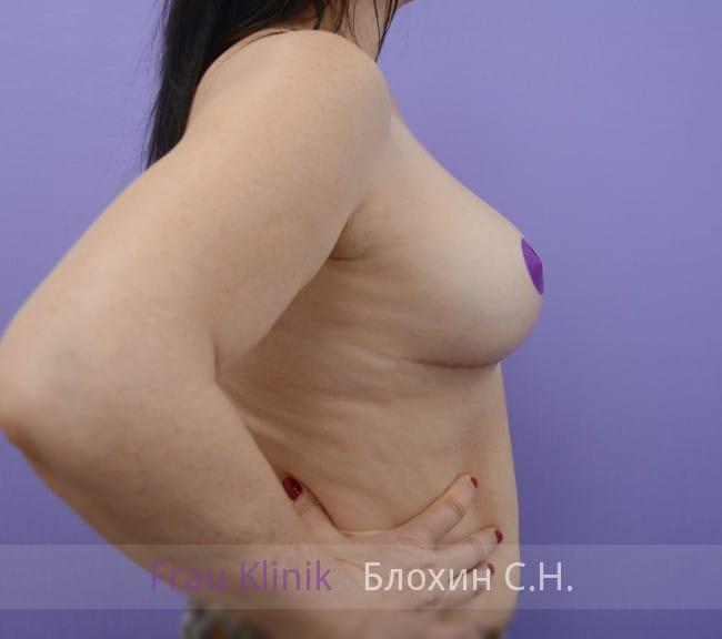 Повторная маммопластика 49