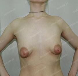 Пластика тубулярной груди 3