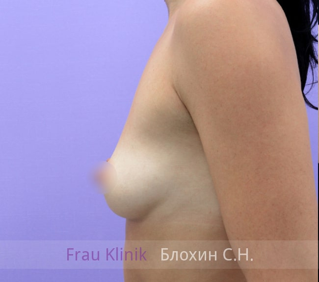 Увеличение груди имплантатами 18