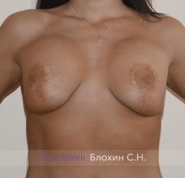 Повторная маммопластика 34