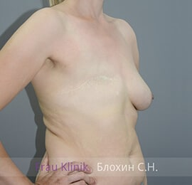 Реконструкция груди 5