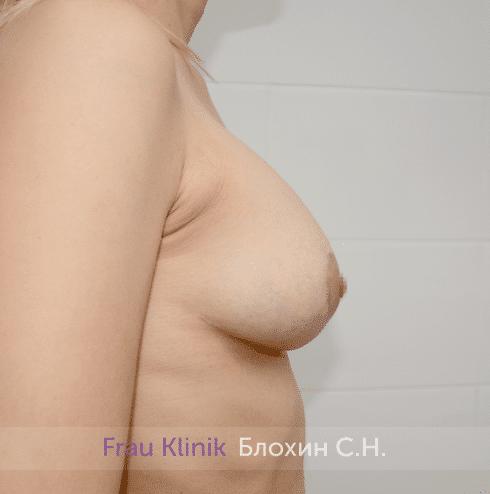 Подтяжка груди 39