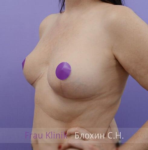 Уменьшение груди 26