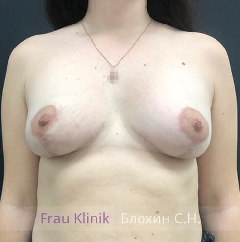 Подтяжка груди 27