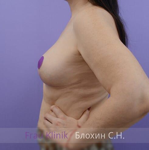 Уменьшение груди 24