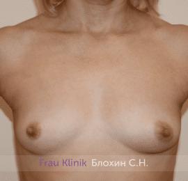 Увеличение груди 200