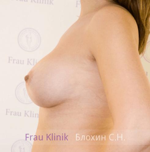 Увеличение груди 25