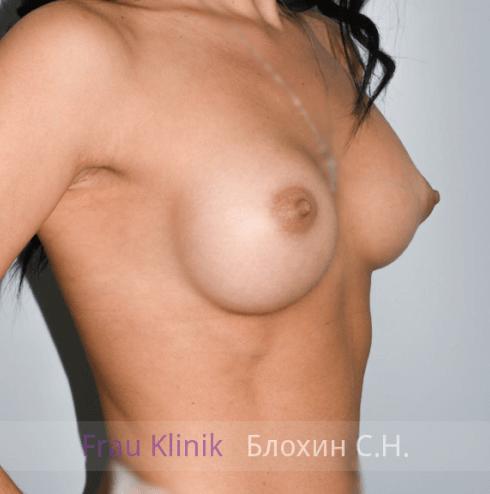 Увеличение груди 41