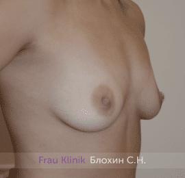 Увеличение груди 212