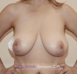 Уменьшение груди 61
