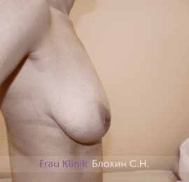 Уменьшение груди 71