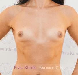 Увеличение груди 56