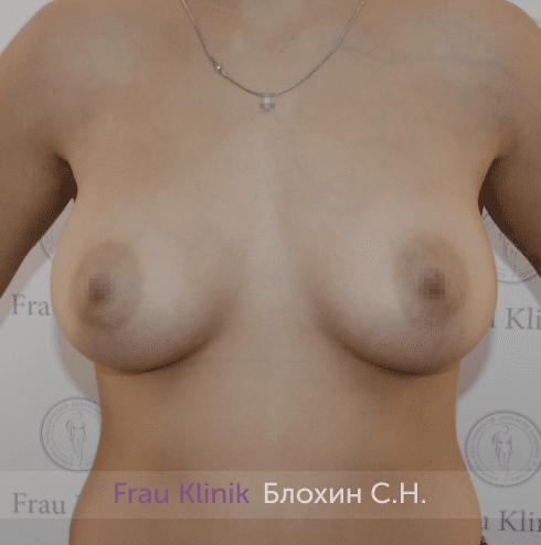 Увеличение груди 211