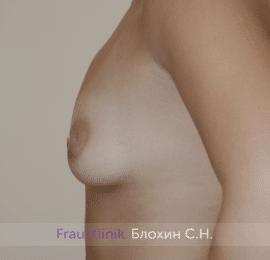 Увеличение груди 188