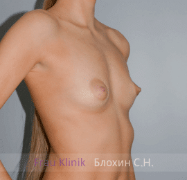 Увеличение груди 68