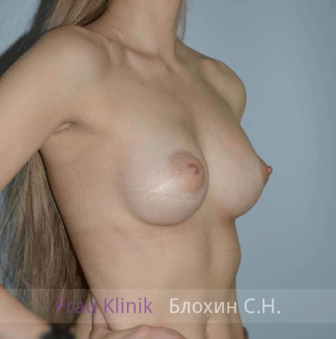Увеличение груди 69