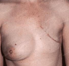 Реконструкция груди 15