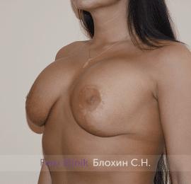 Повторная маммопластика 32