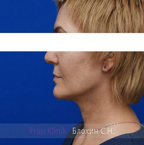Круговая подтяжка лица 5